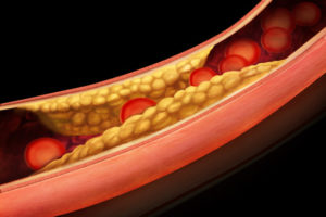 Anatomie aterosklerózy v arterii v důsledku cholesterolu