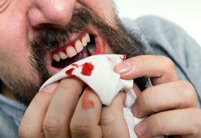 Masticha parodontóza
