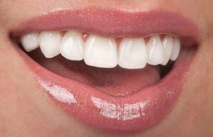 Masticha ústní dutina